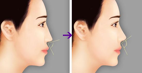 Chất liệu nâng mũi phải đảm bảo tính an toàn và thẩm mỹ