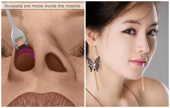Phẫu thuật mũi Hàn Quốc không hề để lại sẹo xấu