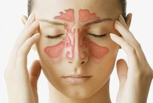Có nên nâng mũi khi bị viêm xoang không?