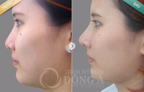 Kỹ thuật sửa mũi tẹt thành mũi cao nhờ công nghệ 3D