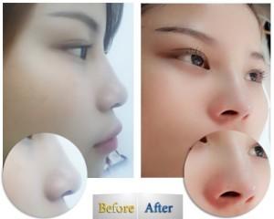 Kết quả nâng mũi bọc sụn được bao lâu? Có vĩnh viễn không?