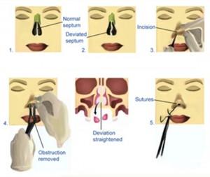 Cách sửa đầu mũi to an toàn tạo dáng mũi thon gọn cân đối