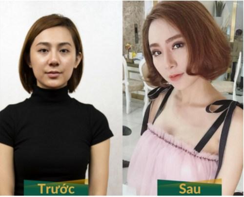 khách hàng nâng mũi bọc sụn Hàn Quốc tại Đông Á