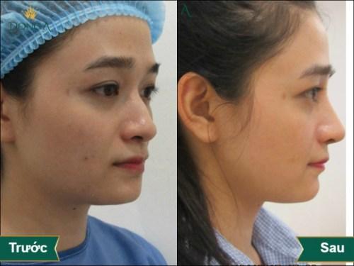 trước sau sửa mũi