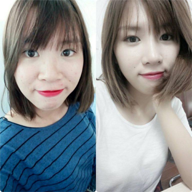 Khách hàng nâng mũi S-line Dr. Park Linh Rin