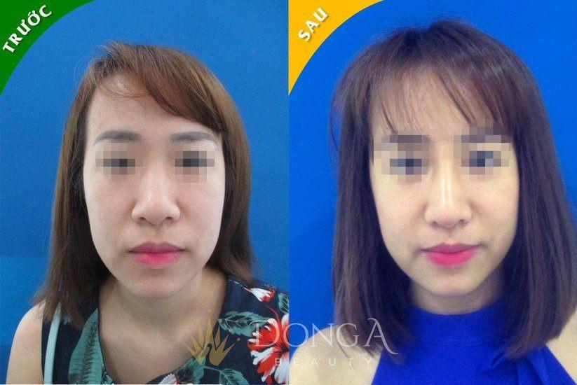 Làm mũi cao lên bằng công nghệ nâng mũi S-line Dr.Park