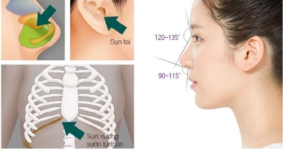 Cách làm mũi cao với công nghệ nâng mũi bọc sụn tự thân