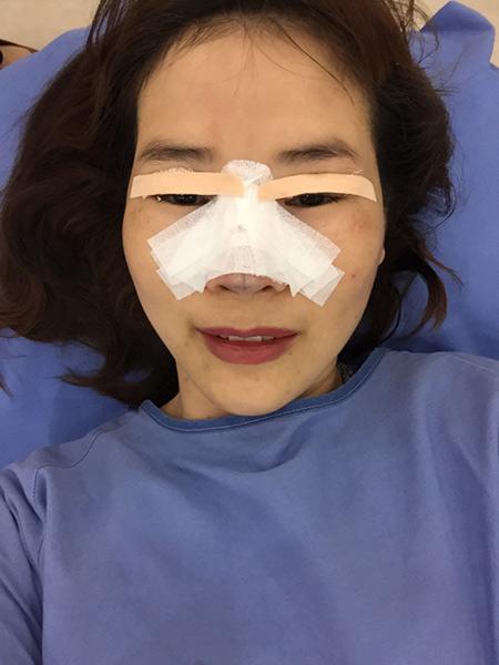 Chỉ vài giờ sau khi phẫu thuật nâng mũi và cắt mí cô không ngần ngại chia sẻ hình ảnh cho bạn bè và người thân.