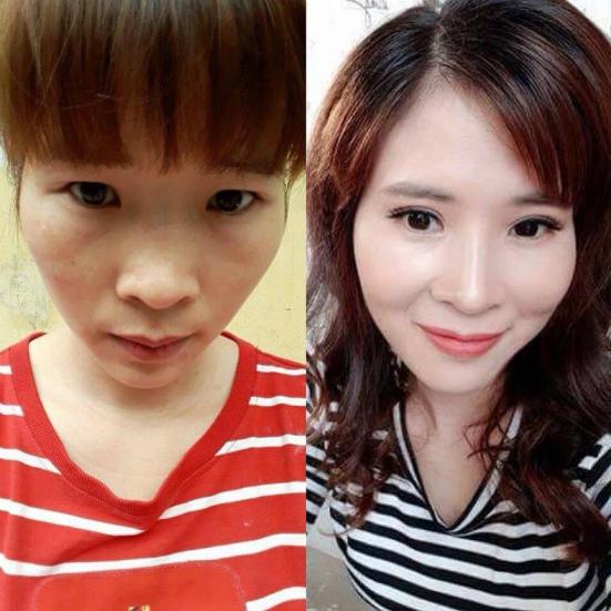 Vân Anh trước và sau khi phẫu thuật thẩm mỹ.