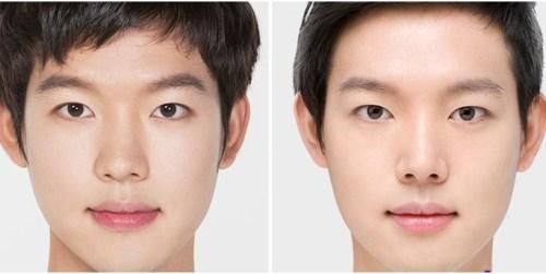 18 tuổi có nên cắt cánh mũi không?