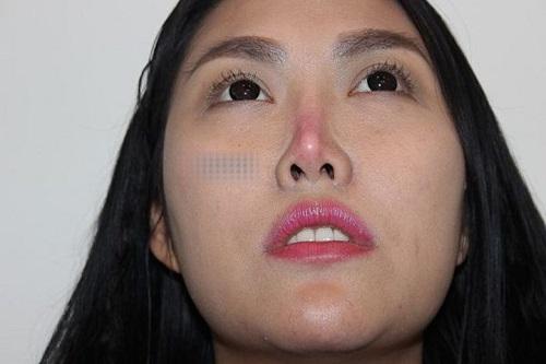 Làm sao để sửa lại mũi hỏng?