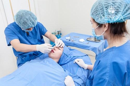 Quy trình thực hiện công nghệ nâng mũi bọc sụn