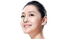 Phương pháp nâng mũi đẹp hoàn hảo
