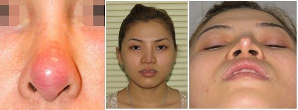 Nguyên nhân nâng mũi bị hỏng và phương pháp khắc phục hiệu quả nhất