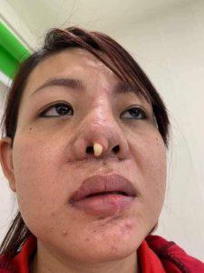 Nâng mũi S line cấu trúc giá bao nhiêu ? Bệnh viện thẩm mỹ Đông Á 5
