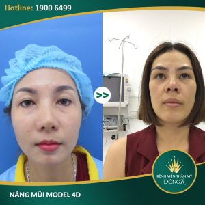 Nâng mũi cấu trúc L line | Phương pháp cho dáng mũi nam tính, chuẩn đẹp 4