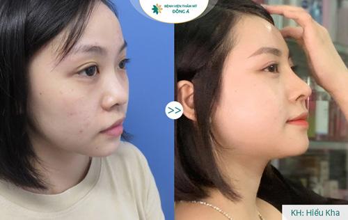 kết quả sau nâng mũi